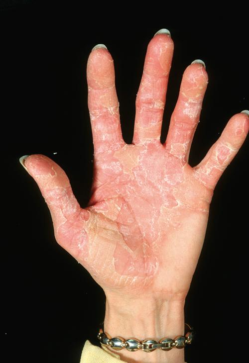 The Elusive Gene For Keratolytic Winter Erythema